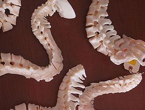 3D Spine Modeling